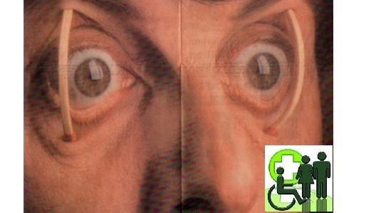 Emdr or eye movement ptsd stress relief you can do for free but with emdr or eye movement ptsd stress relief you can do for free but with caution solutioingenieria Choice Image